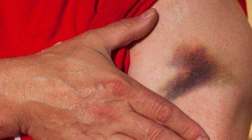 Prellung und Hämatom nach VErkehrsunfall - Schmerzensgeldanspruch